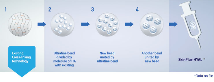 Long lasting HA filler - Patented MCL Technology